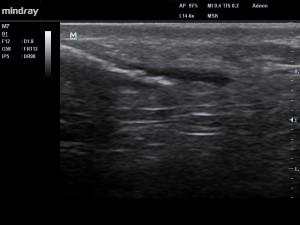 Fig4. Electrolyse (au moyen d'une petite aiguille d'acupuncture) écho-guidée du paratendon.