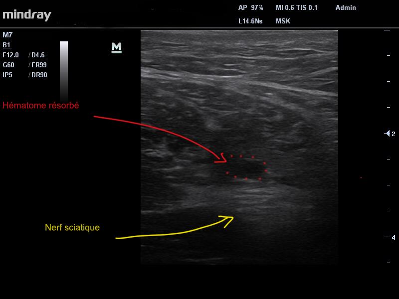 """Image 2. Après 5 semaines d""""évolution. Nette résorption de l'hématome , cicatrisation des fibres. Le nerf sciatique n'est plus refoulé."""