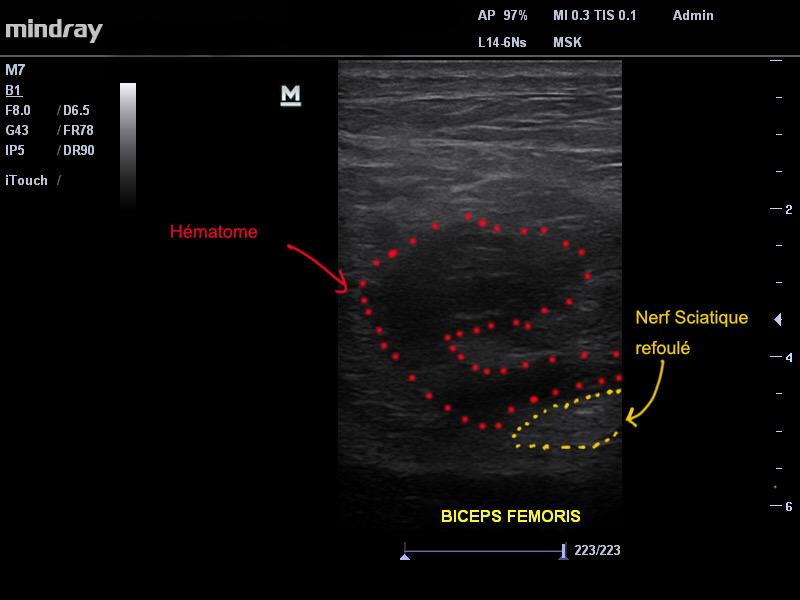 Image 1. On retrouve à l'echographie un hématome important (points rouges) refoulant le nerf sciatique (points jaunes)